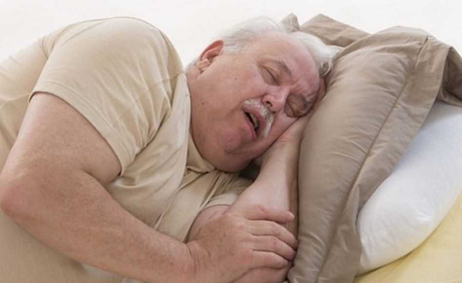People affected with obesity & sleep apnea