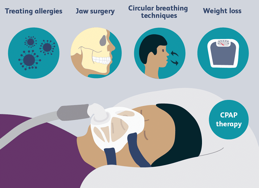 Sleep apnea Treatment option