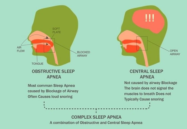 sleep apnea types